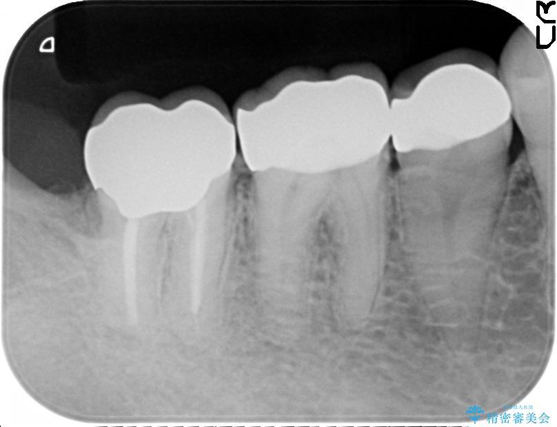 奥歯の虫歯除去とセラミック治療 治療例(ビフォーアフター) 治療後