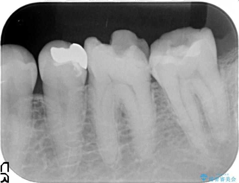 奥歯の虫歯除去とセラミック治療 治療例(ビフォーアフター) 治療前