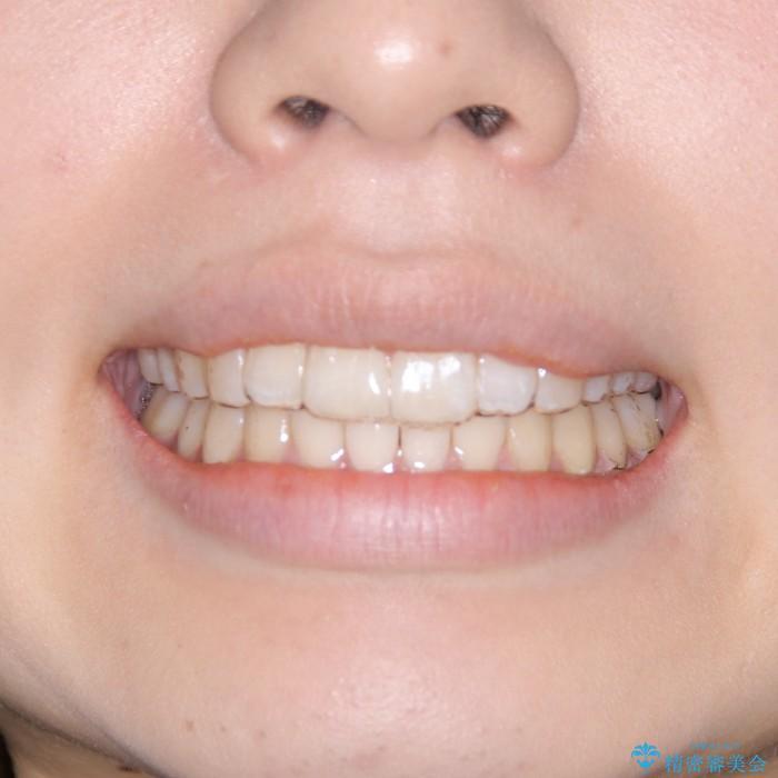20代女性 インビザラインでの出っ歯の矯正 治療例(ビフォーアフター) 治療後