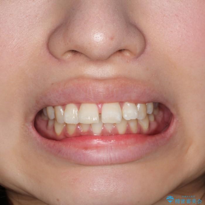 20代女性 インビザラインでの出っ歯の矯正 治療例(ビフォーアフター) 治療前