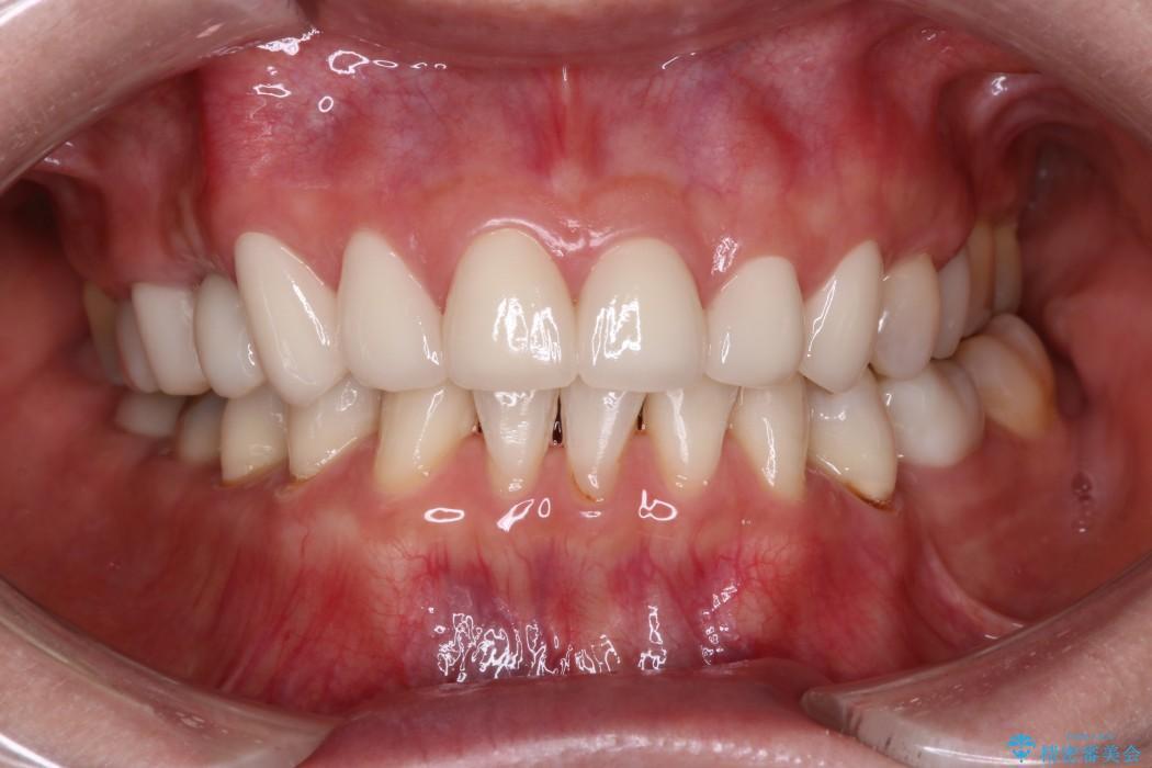 上の前歯(6本)のオールセラミック 治療例(ビフォーアフター) 治療後