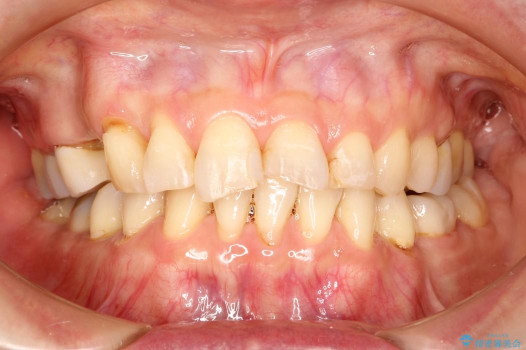 上の前歯(6本)のオールセラミック 治療例(ビフォーアフター) 治療前
