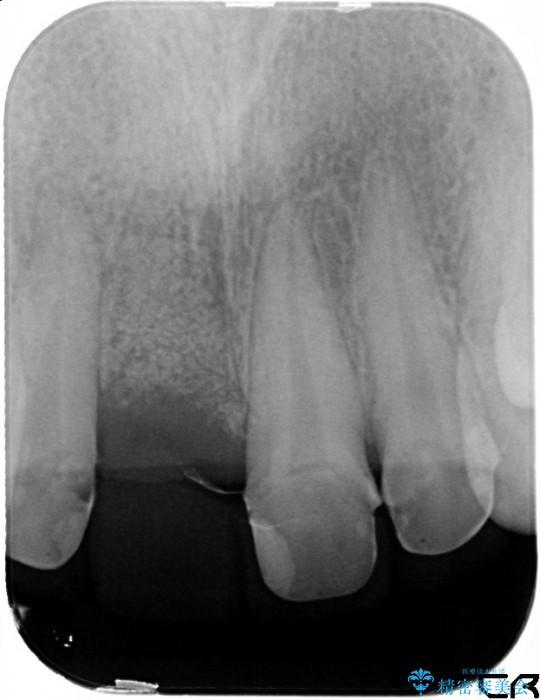 上の前歯 歯槽骨の再生治療 治療例(ビフォーアフター) 治療後