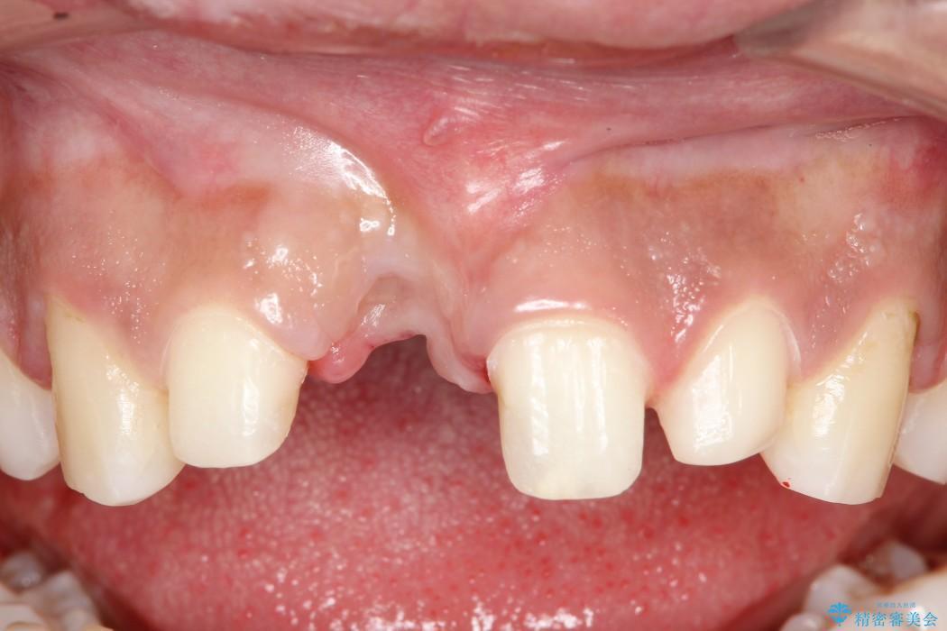 上の前歯 歯槽骨の再生治療 治療例(ビフォーアフター) 治療前