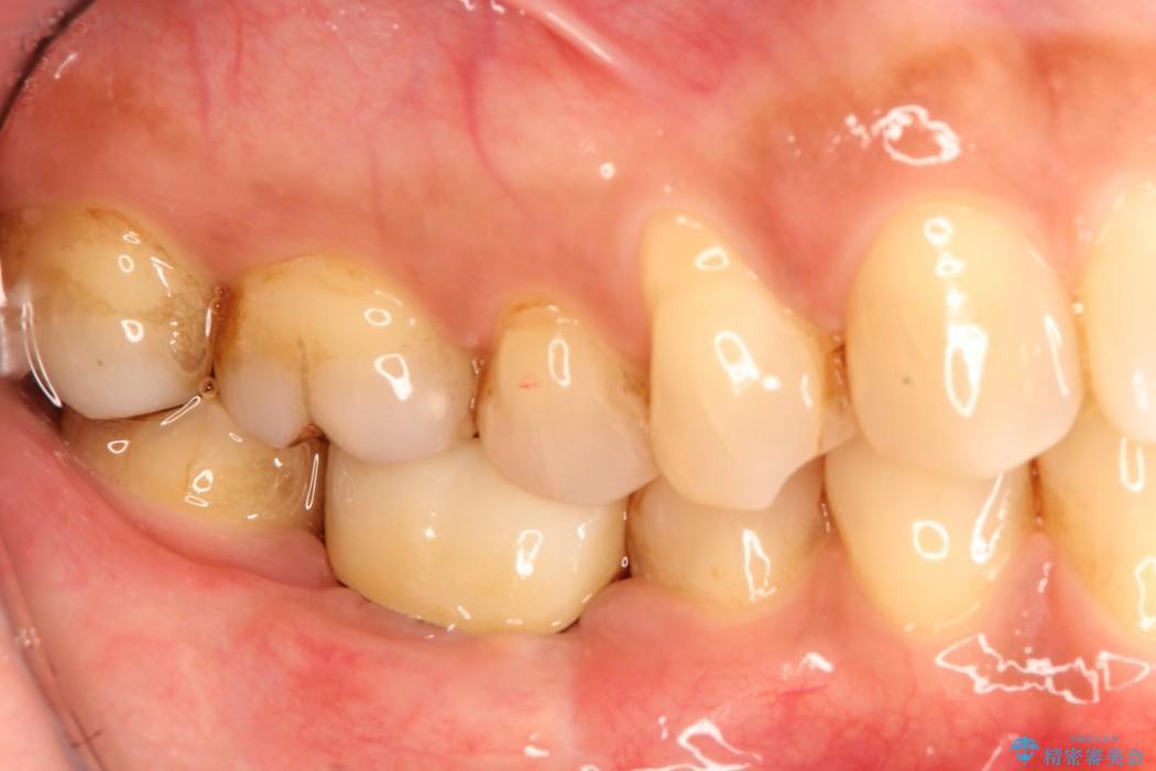 奥歯のストローマン・インプラント 治療例(ビフォーアフター) 治療後