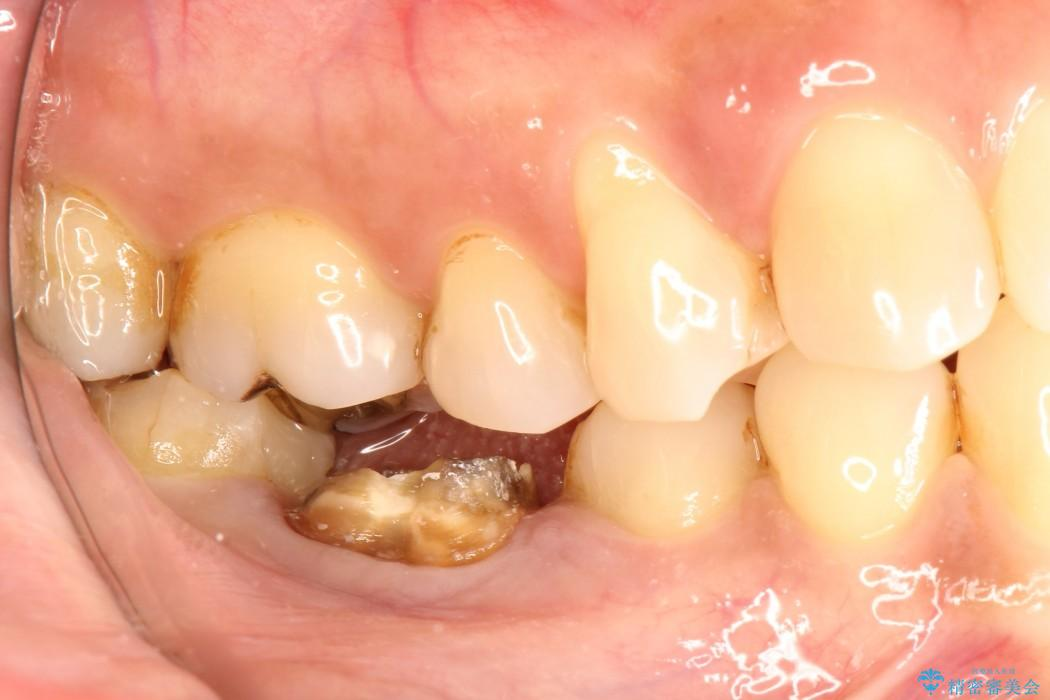 奥歯のストローマン・インプラント 治療例(ビフォーアフター) 治療前