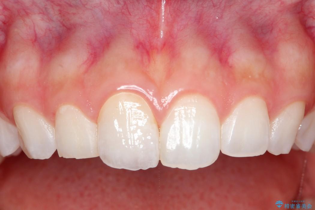 20代女性 前歯のオールセラミック 治療例 治療後