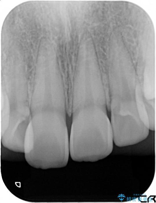 20代女性 前歯のオールセラミック 治療例(ビフォーアフター) 治療前