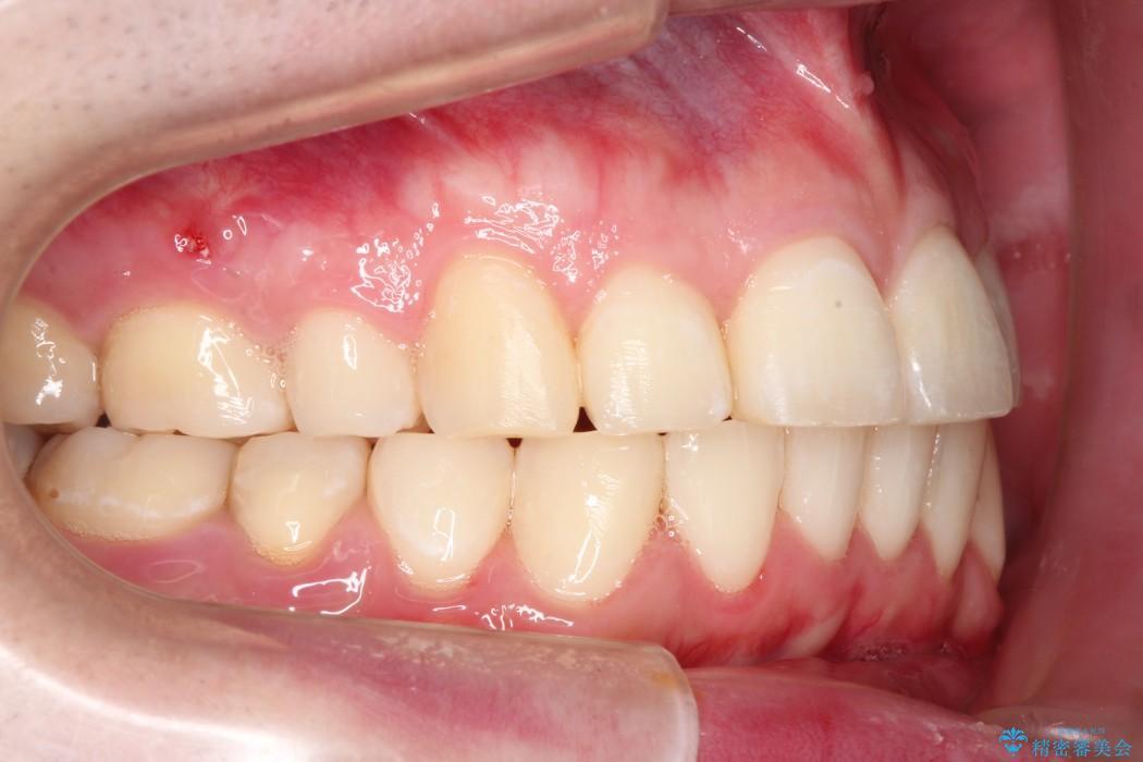 ワイヤー矯正による出っ歯の治療例(ビフォーアフター) 治療後