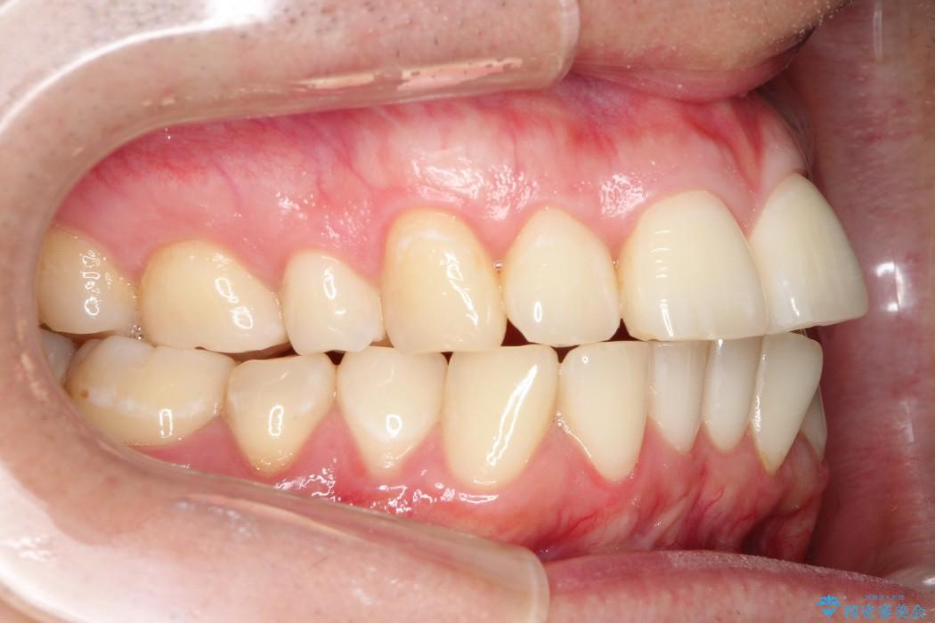 ワイヤー矯正による出っ歯の治療例(ビフォーアフター) 治療前