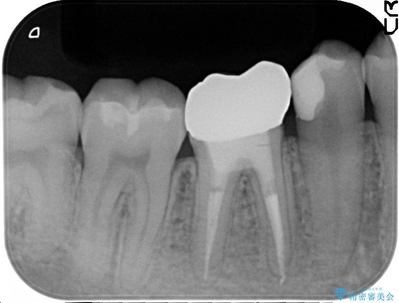 奥歯のオールセラミックと根管治療 治療例(ビフォーアフター) 治療後