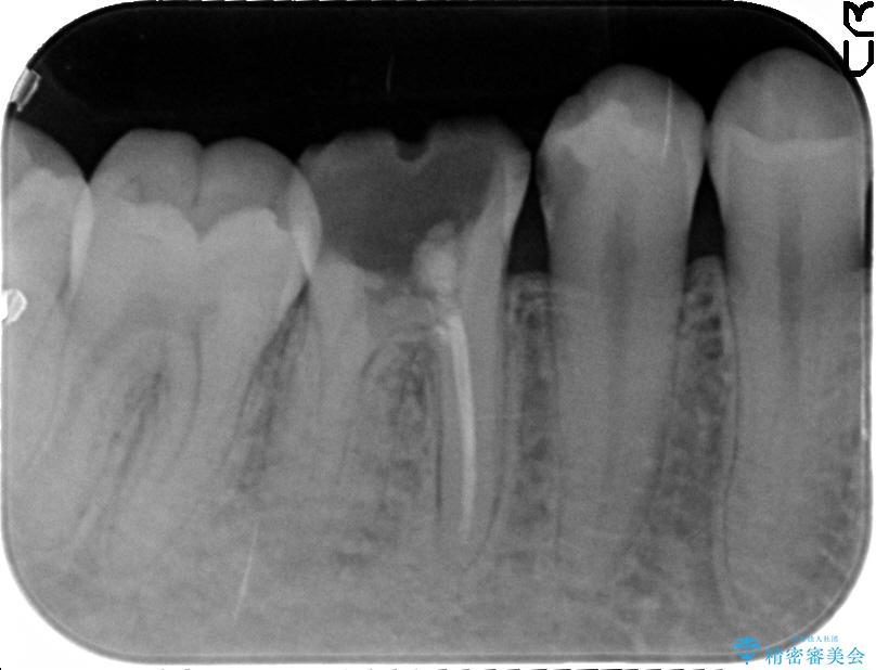 奥歯のオールセラミックと根管治療 治療例(ビフォーアフター) 治療前
