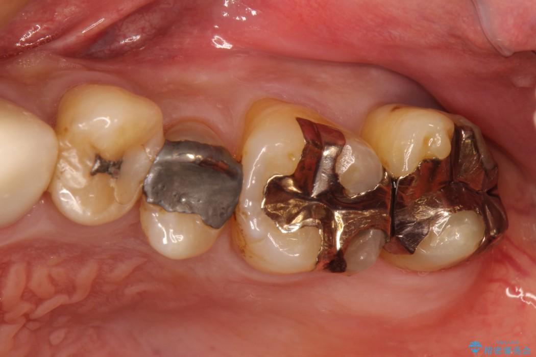 金属(保険治療)の被せ物・詰め物をやり変えるセラミック治療 治療例 治療前