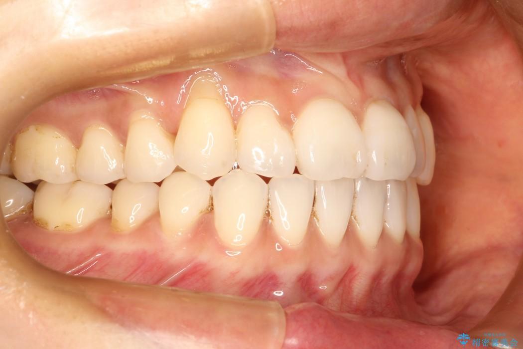 30代女性 八重歯のインビザライン矯正 治療例(ビフォーアフター) 治療後