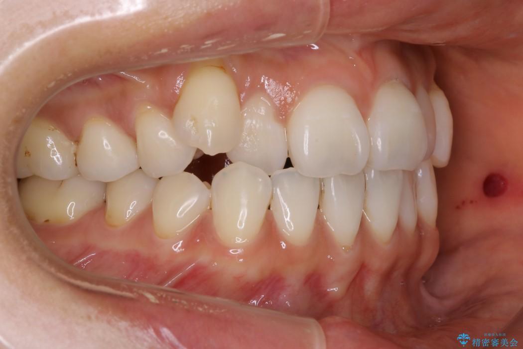 30代女性 八重歯のインビザライン矯正 治療例(ビフォーアフター) Before