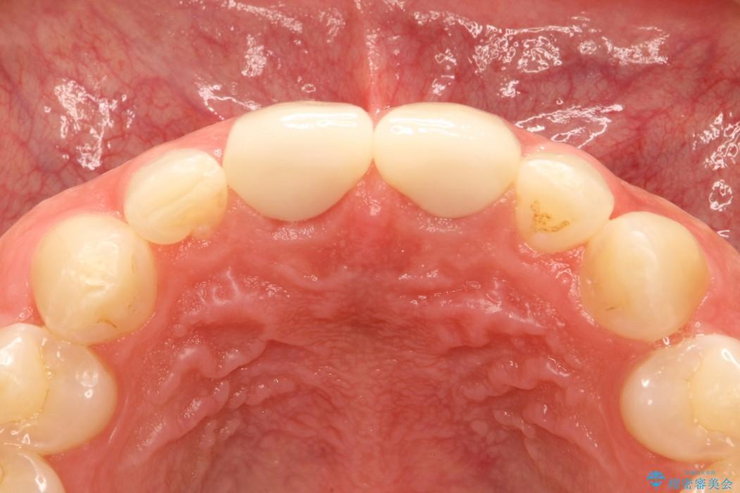 前歯の部分矯正とセラミック治療 治療例(ビフォーアフター) 治療後