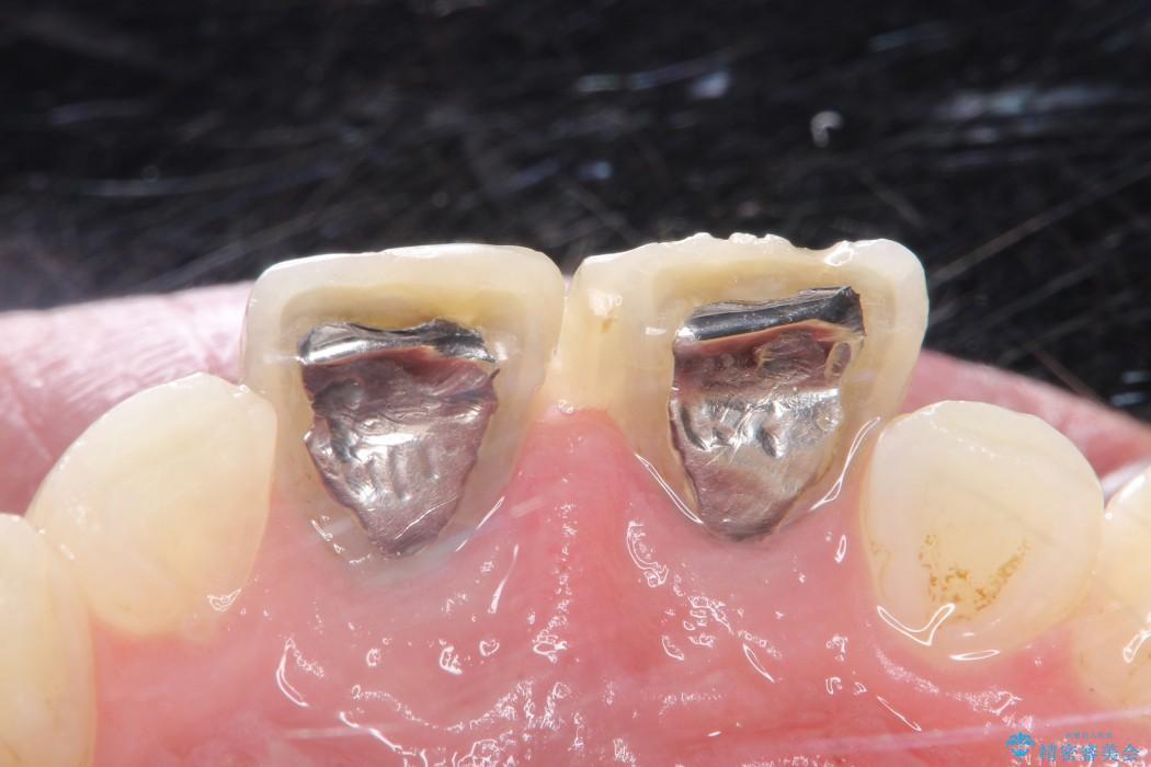 前歯の部分矯正とセラミック治療 治療例(ビフォーアフター) 治療前
