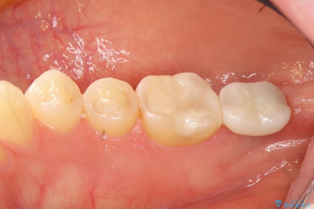 奥歯のショート・インプラント 治療例(ビフォーアフター) After