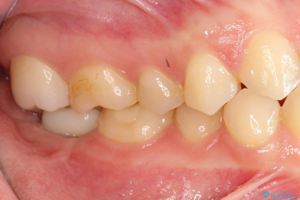 奥歯のショート・インプラント 治療例 治療後