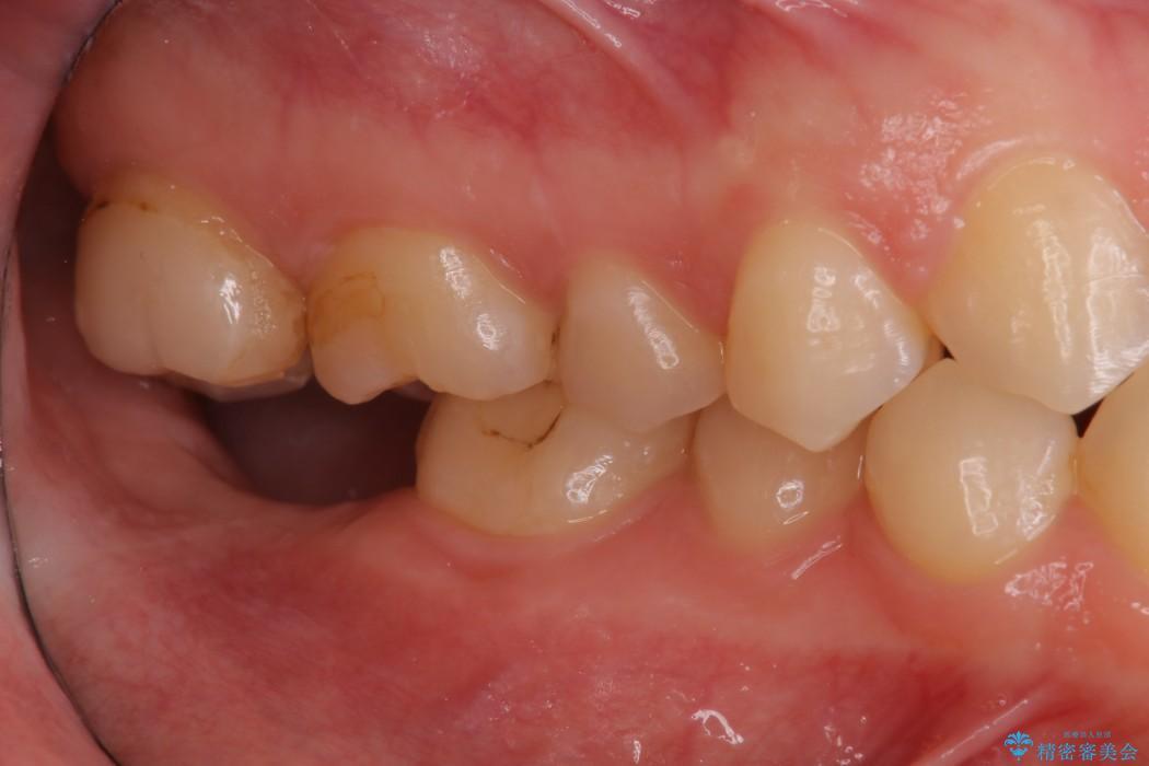 奥歯のショート・インプラント 治療例 治療前