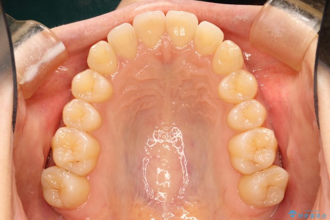 20代女性 軽度な前歯のインビザラインi7矯正 治療例(ビフォーアフター) 治療後