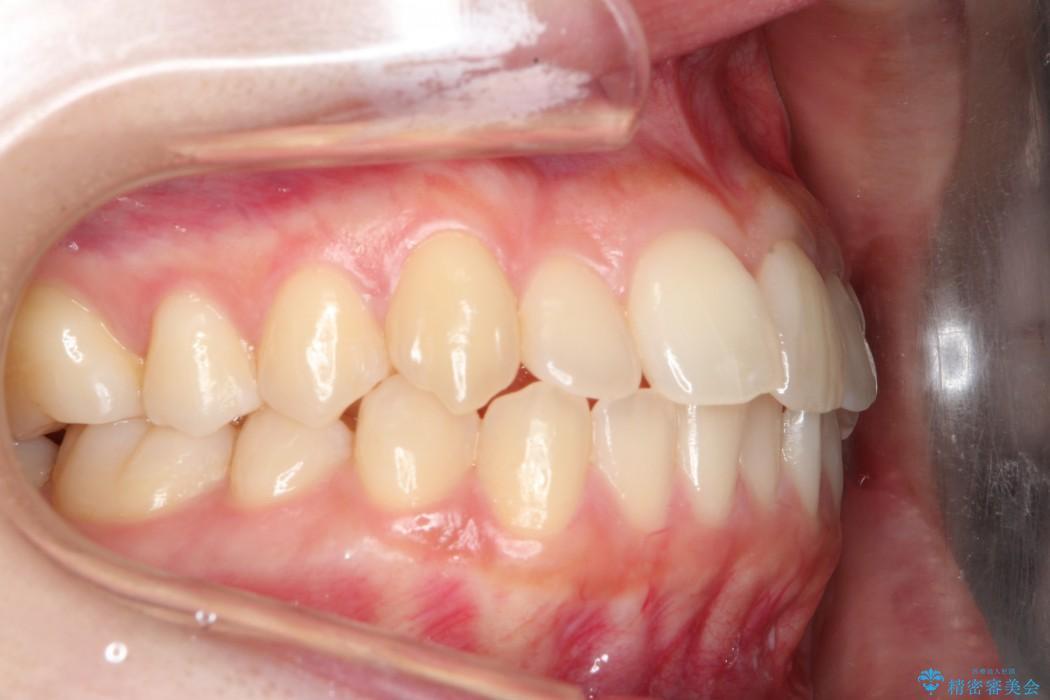 20代女性 軽度な前歯のインビザラインi7矯正 治療例(ビフォーアフター) 治療前