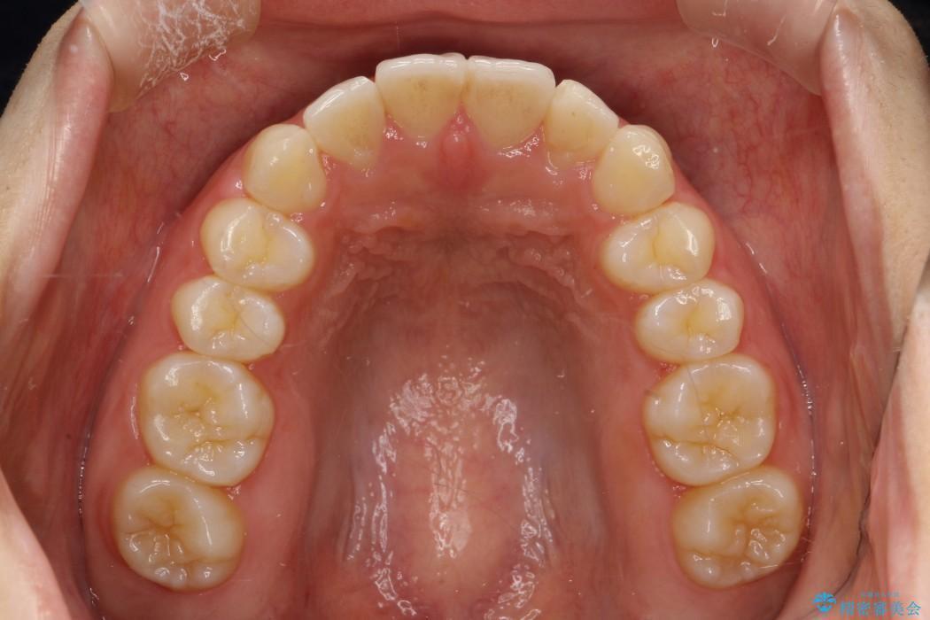 20代女性 前歯のガタガタのインビザライン矯正 治療例(ビフォーアフター) 治療後