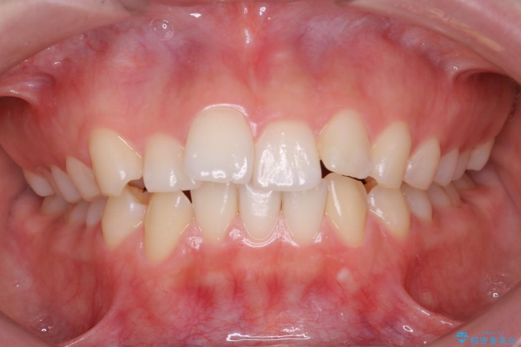 20代女性 前歯のガタガタのインビザライン矯正 治療例(ビフォーアフター) 治療前