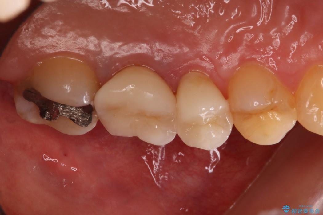 20代女性 深い位置まで虫歯になった歯を残す 治療例(ビフォーアフター) 治療後