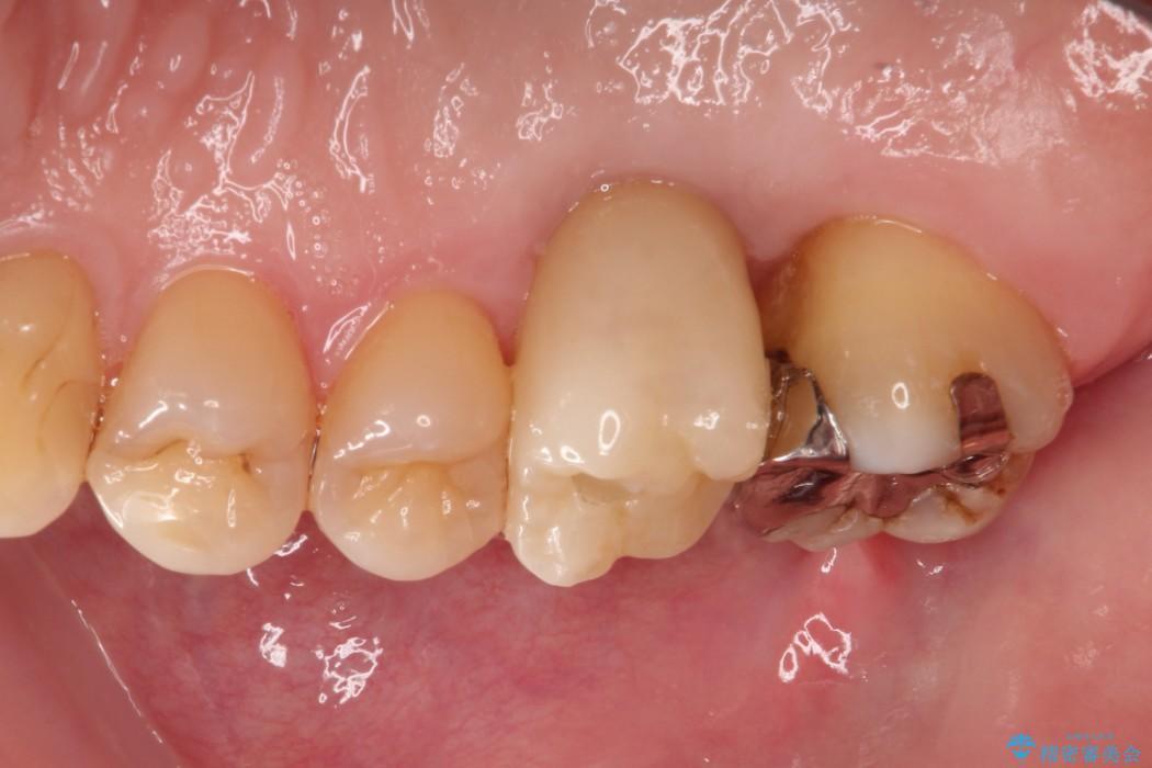 保存ができない奥歯を抜歯してインプラント(ビフォーアフター) 治療後