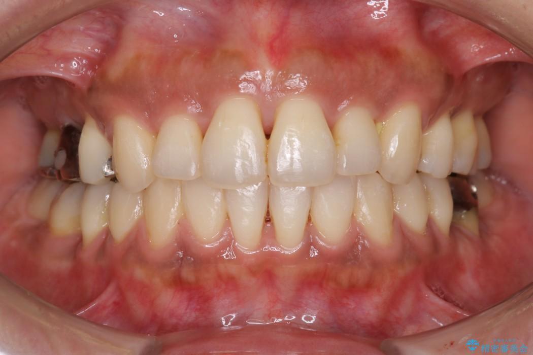 前歯の出っ張り・ガタガタを抜歯で矯正(ビフォーアフター) 治療後
