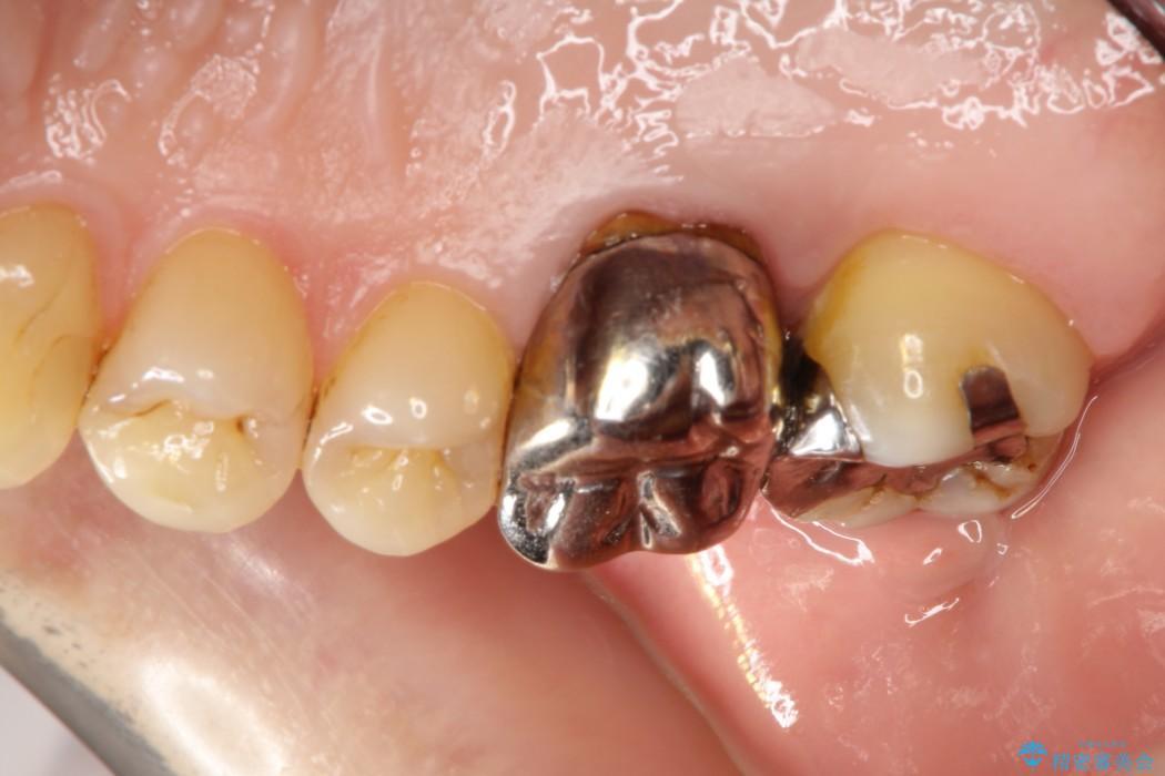 保存ができない奥歯を抜歯してインプラント(ビフォーアフター) 治療前