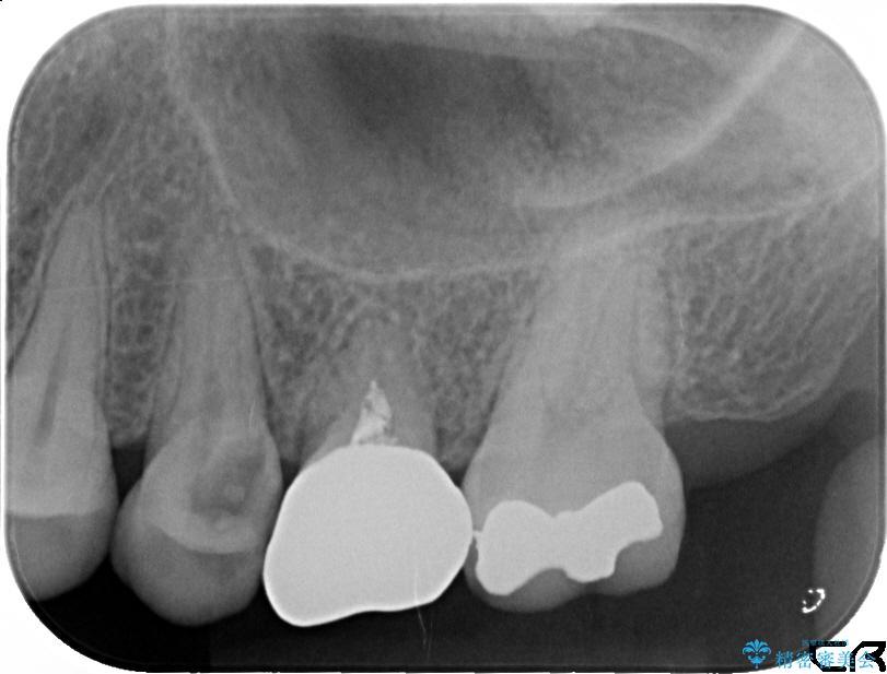 20代女性 深い位置まで虫歯になった歯を残す 治療例(ビフォーアフター) 治療前