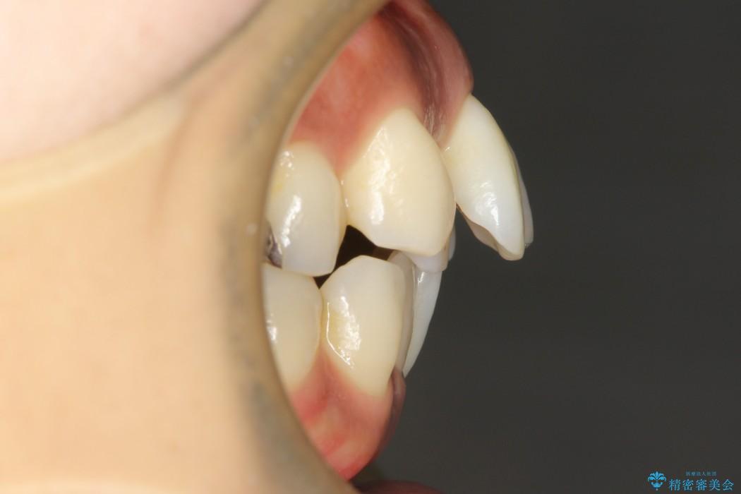 前歯の出っ張り・ガタガタを抜歯で矯正(ビフォーアフター) 治療前