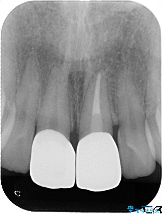 20代女性 前歯の長さを揃える 治療例(ビフォーアフター) 治療後