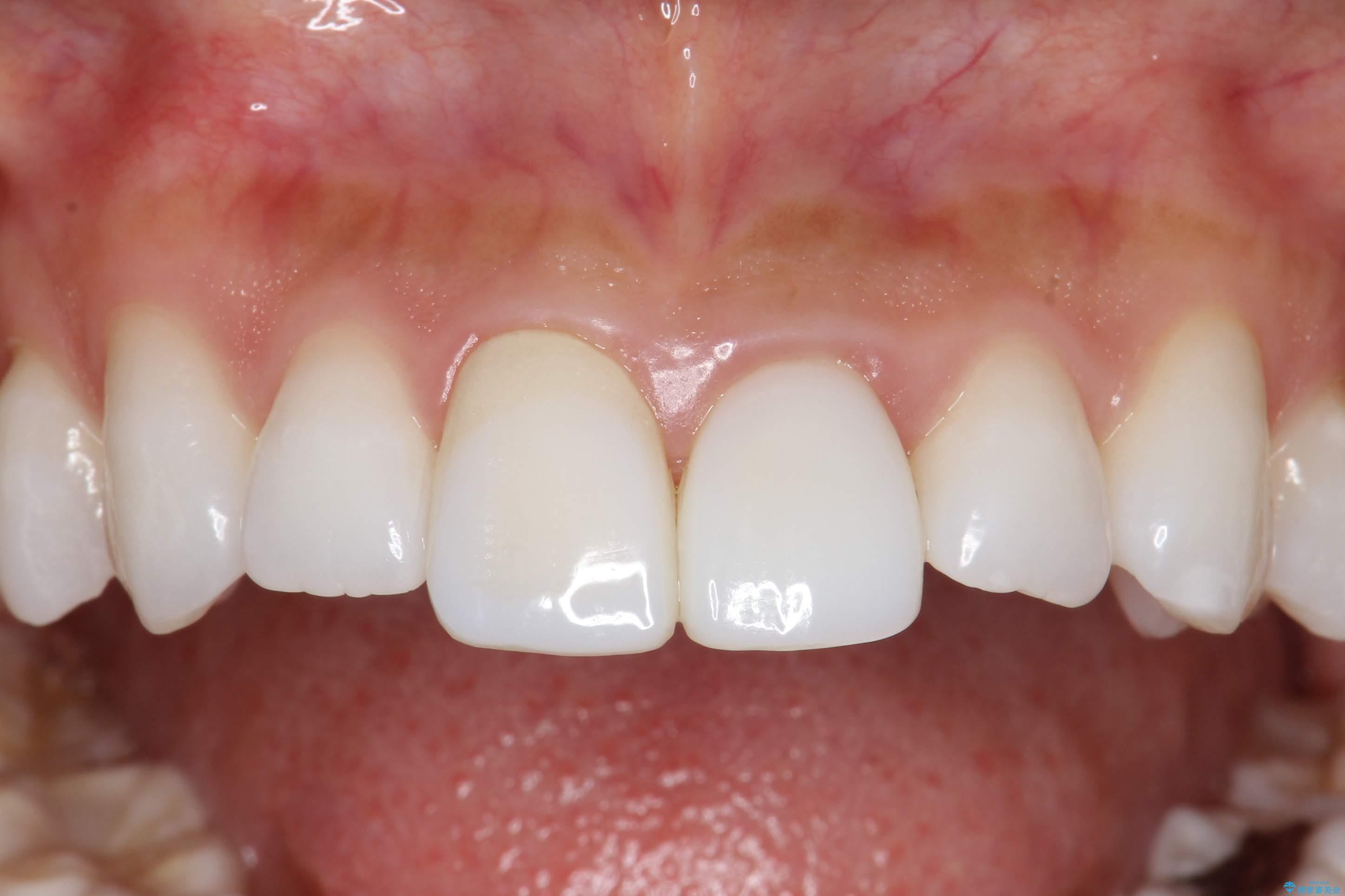 20代女性 前歯の長さを揃える 治療例(ビフォーアフター) 治療前