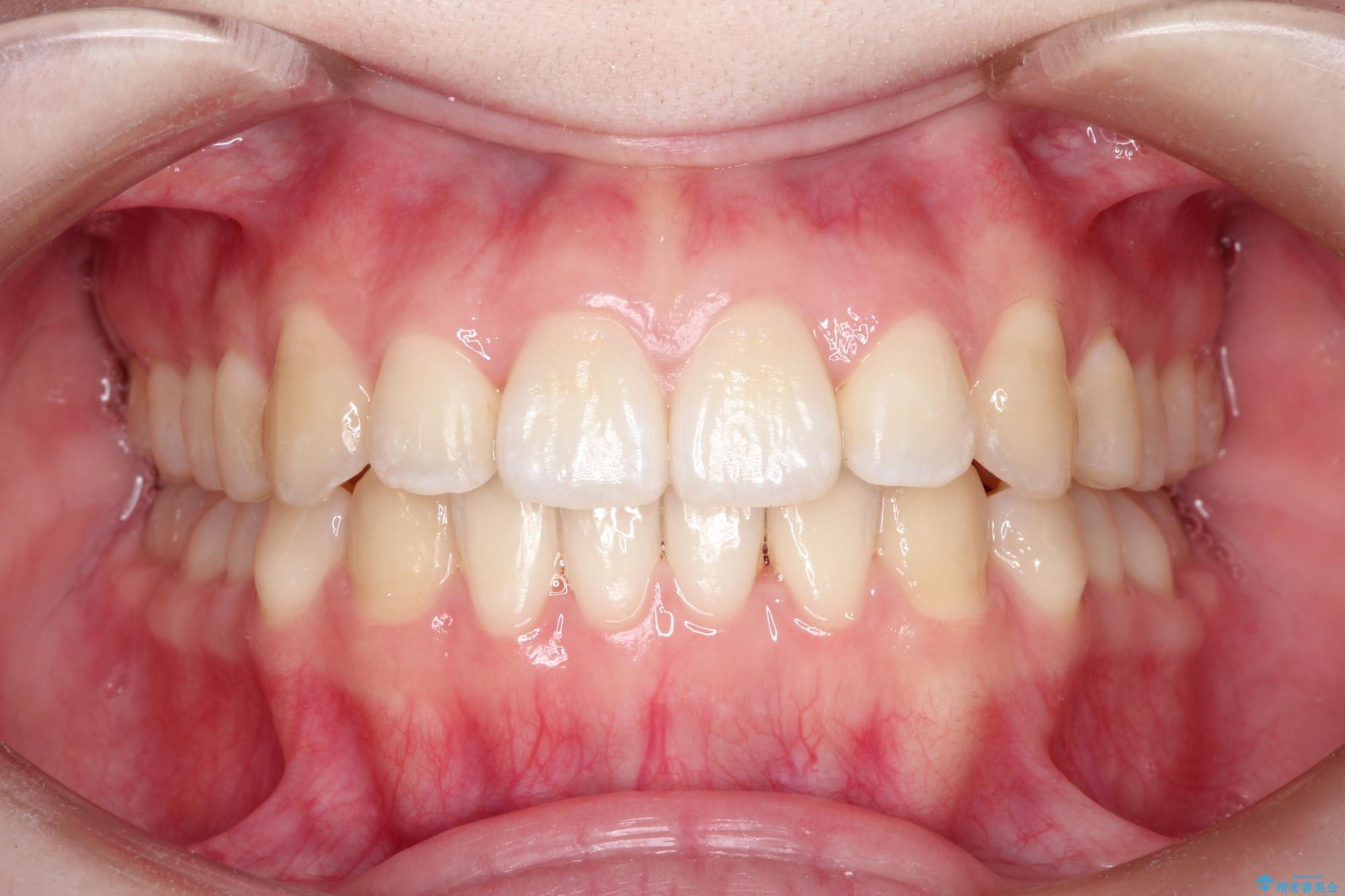 20代女性 前歯がガタガタ 歯を抜かないインビザライン矯正(ビフォーアフター) 治療後