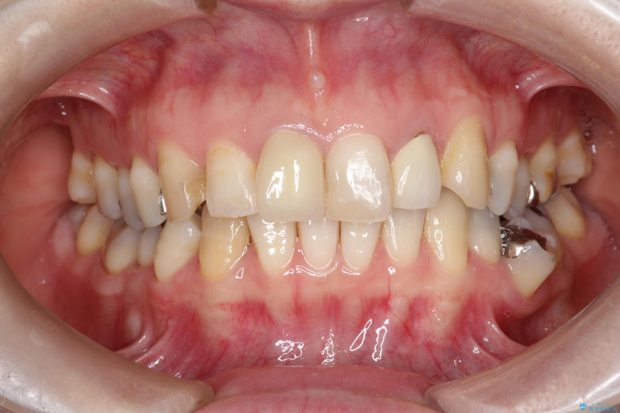 保険診療のかぶせ物を自然な前歯へやり替え(ビフォーアフター) 治療後