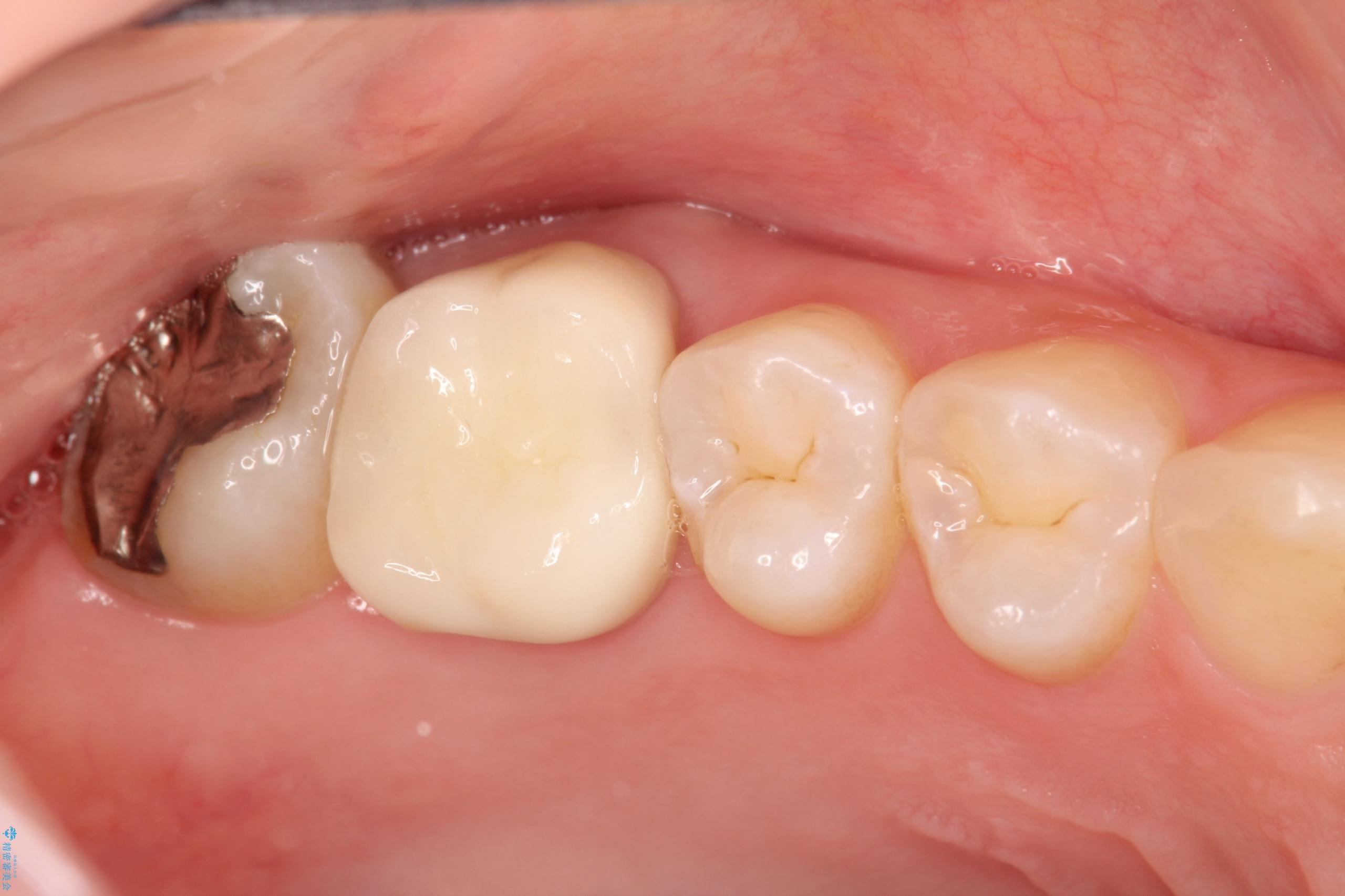 20代女性 歯茎が腫れた 歯の根とセラミック治療(ビフォーアフター) 治療後