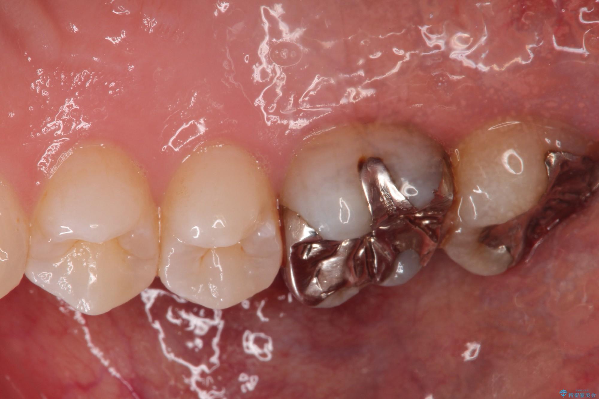 20代女性 歯茎が腫れた 歯の根とセラミック治療(ビフォーアフター) 治療前