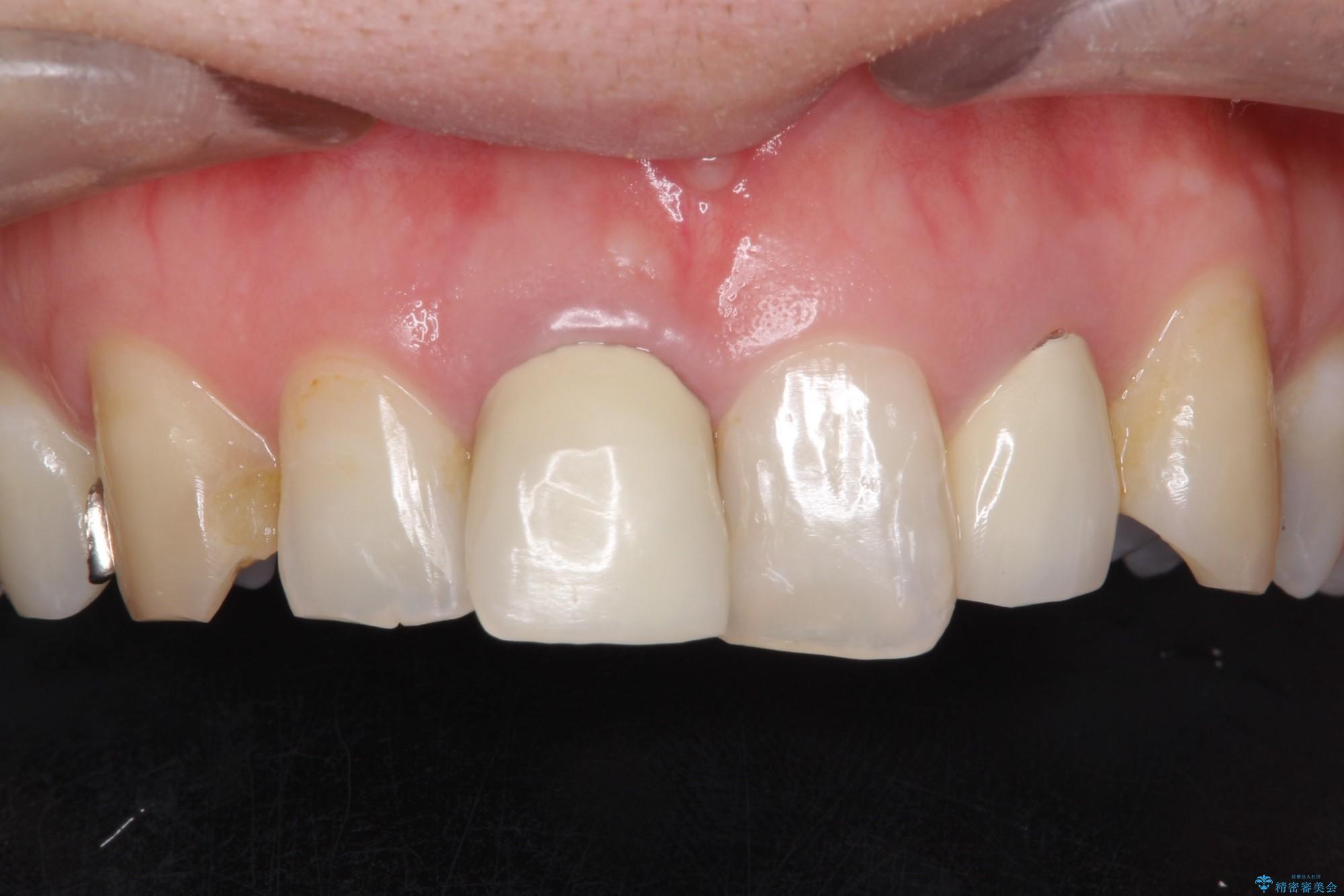 保険診療のかぶせ物を自然な前歯へやり替え(ビフォーアフター) 治療前