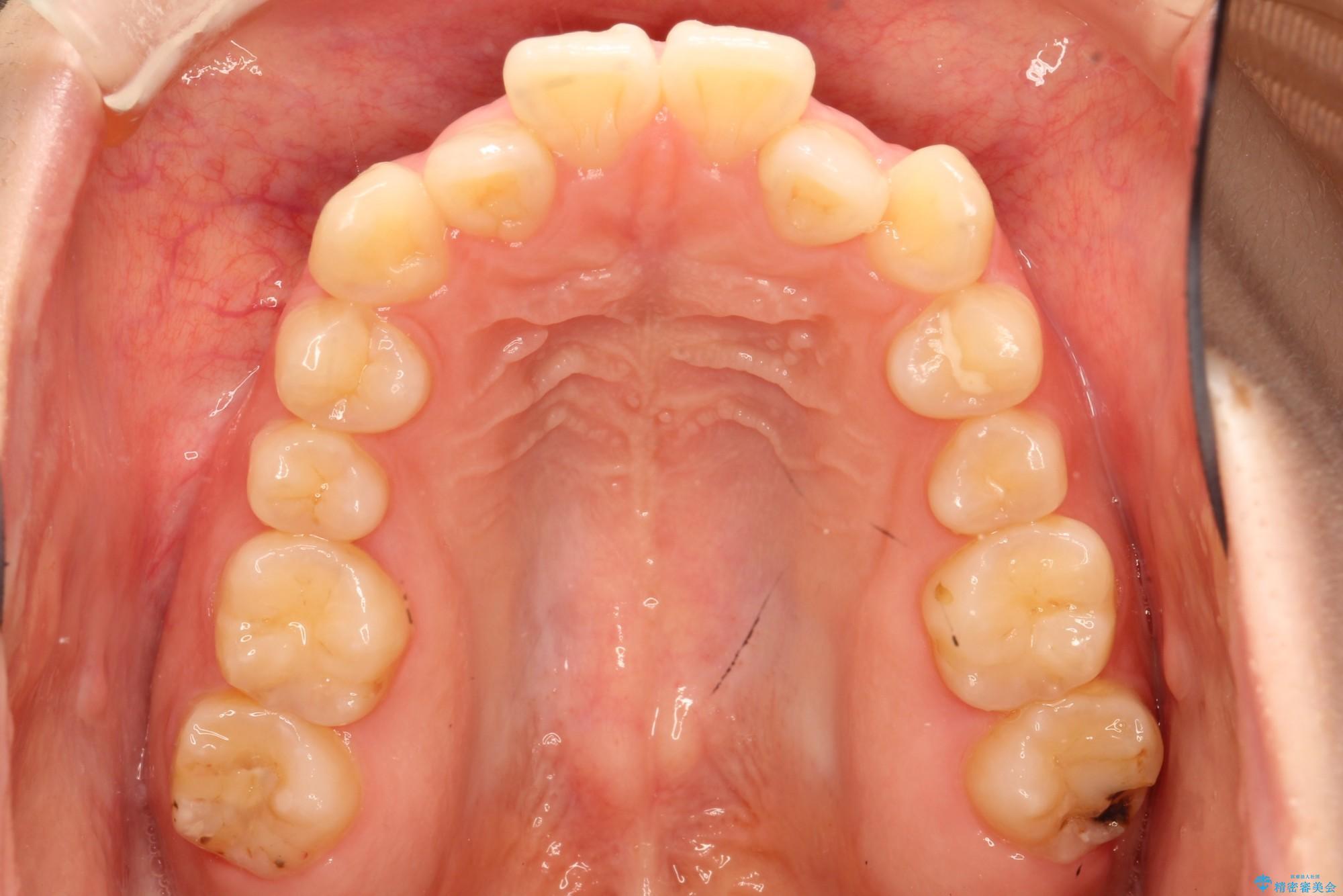 20代女性 前歯がガタガタ 歯を抜かないインビザライン矯正(ビフォーアフター) 治療前