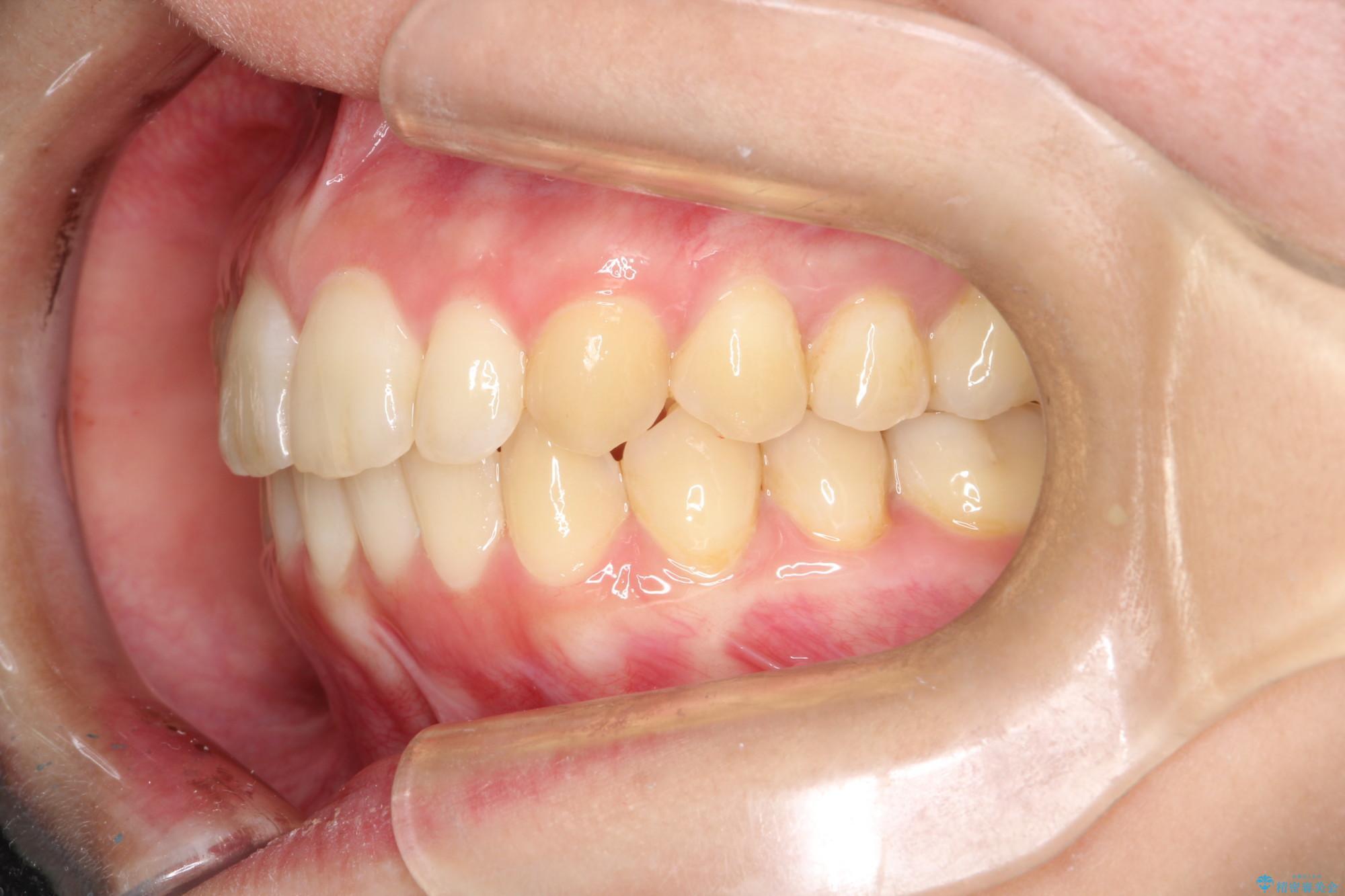 20代女性 出ている前歯をインビザラインで引っ込める(ビフォーアフター) 治療後