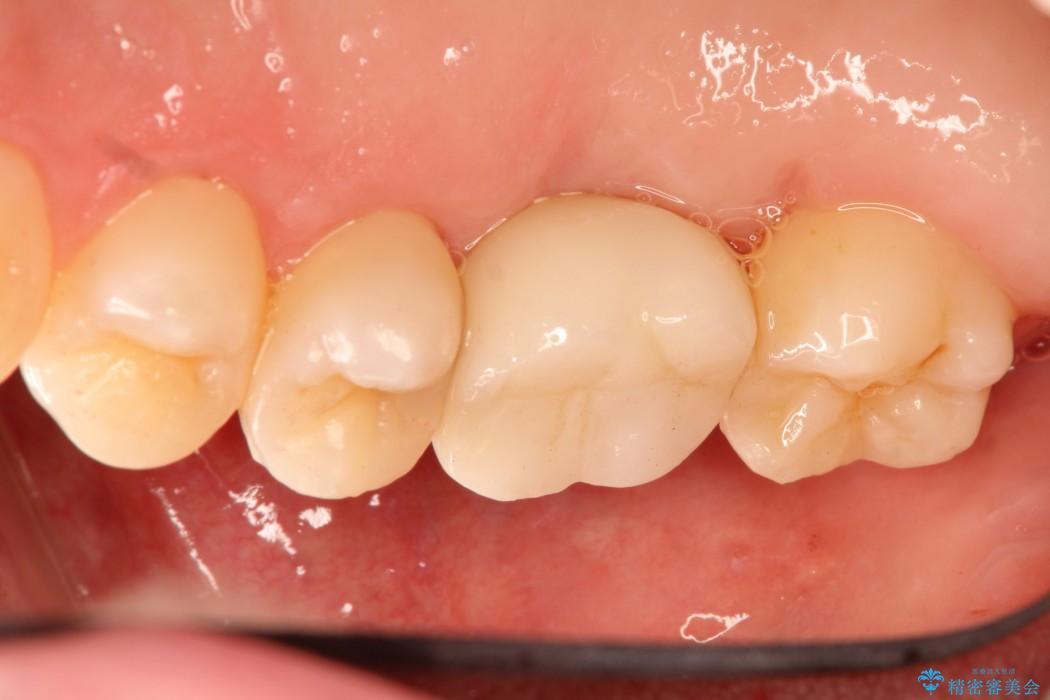 部分矯正とインプラントのよる奥歯の噛み合わせ改善 治療後