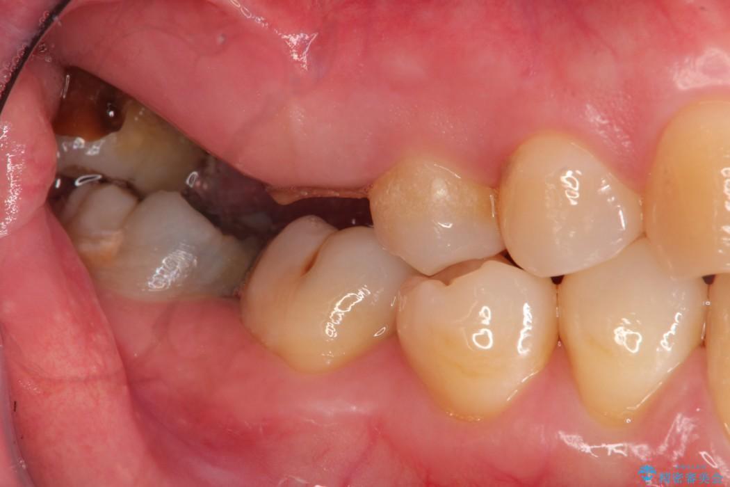 部分矯正とインプラントのよる奥歯の噛み合わせ改善 治療前
