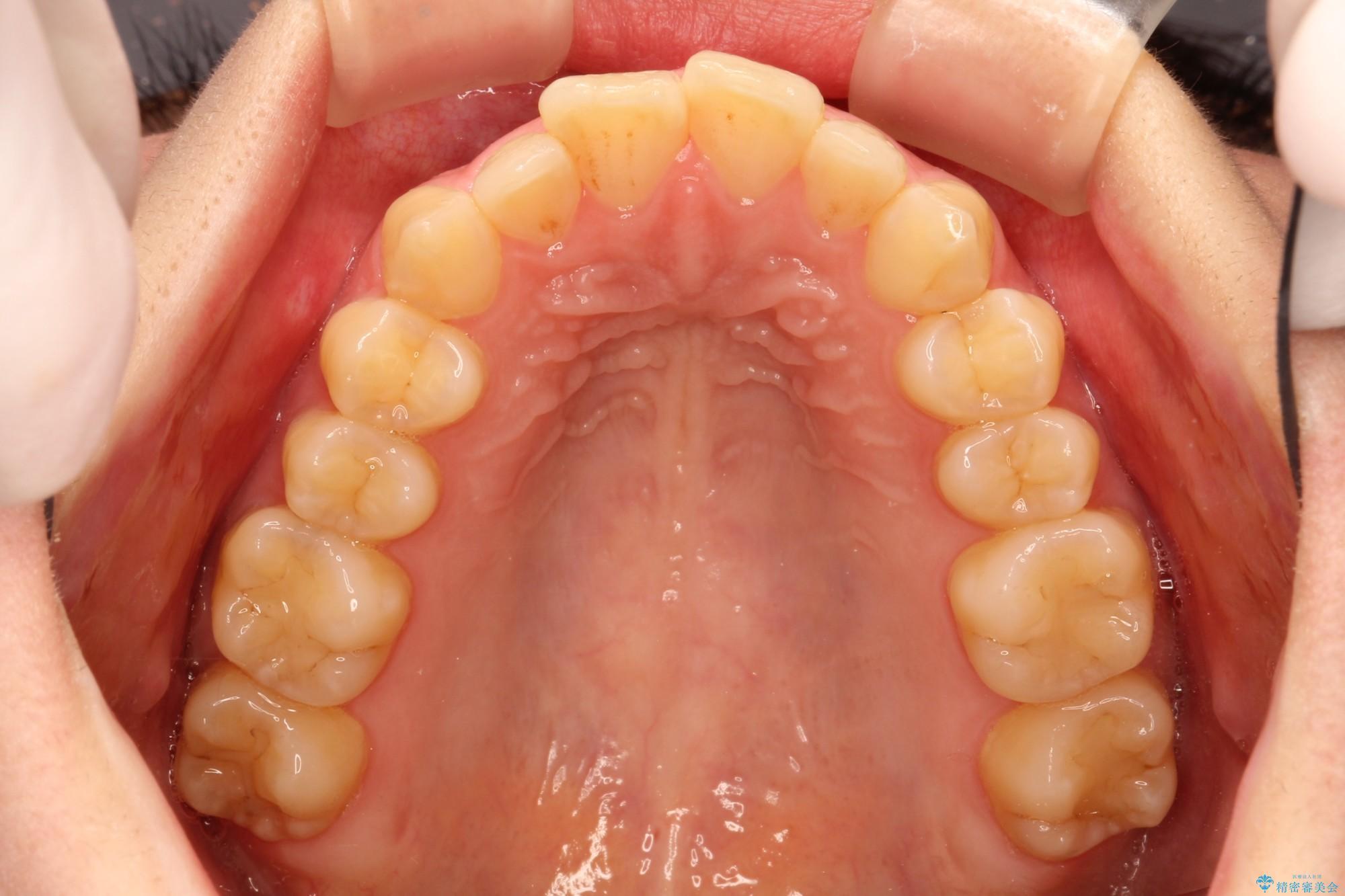 20代女性 出ている前歯をインビザラインで引っ込める(ビフォーアフター) 治療前